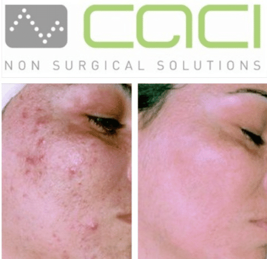 CACI ACNE TREATMENT BIRMINGHAM
